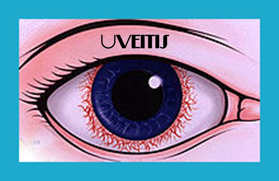 uveitis treatment review of optometry
